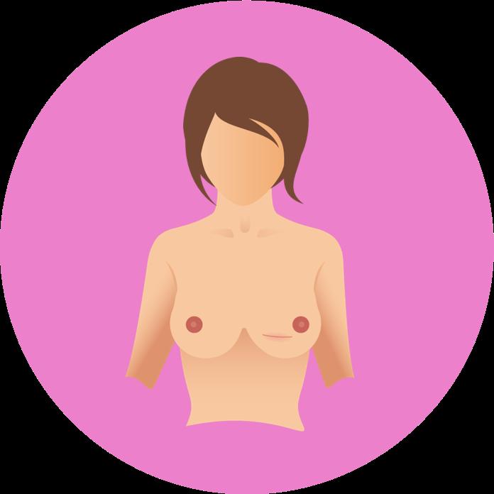 operationen bei Brustkrebs
