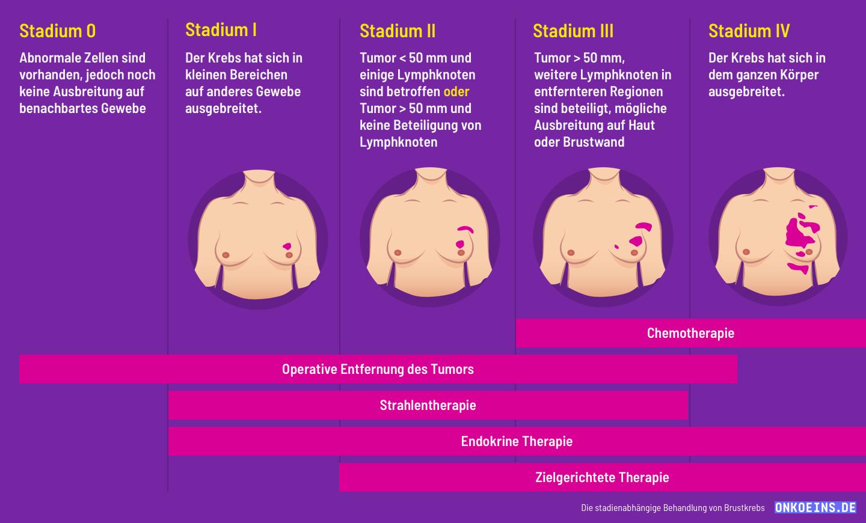 Die stadienabhängige Behandlung von Brustkrebs