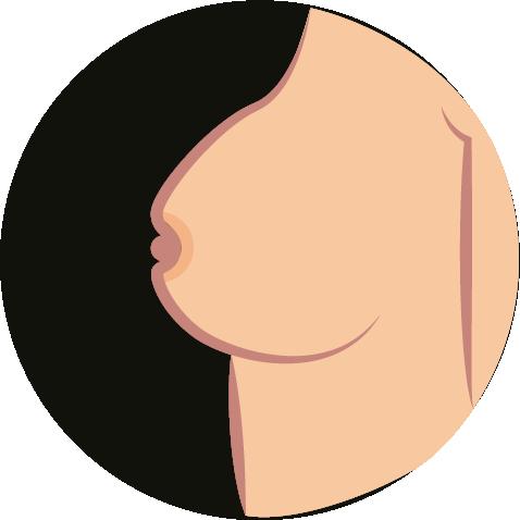 Brustkrebs-Symptome-1