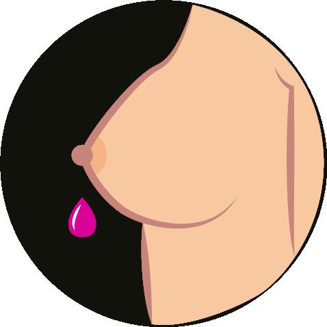 Brustkrebs-Symptome-2