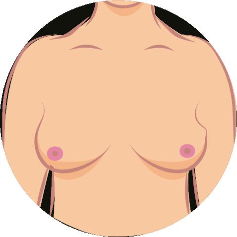 Brustkrebs-Symptome-3