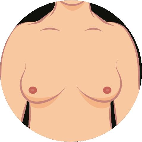 Brustkrebs-Symptome-4