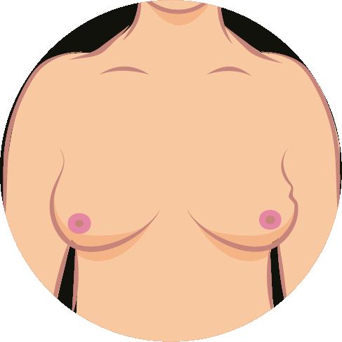Brustkrebs-Symptome-5