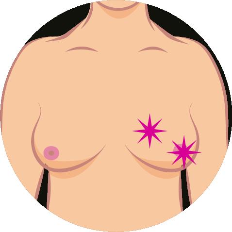 Brustkrebs-Symptome-6