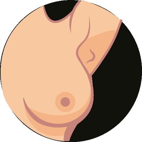Brustkrebs-Symptome-7