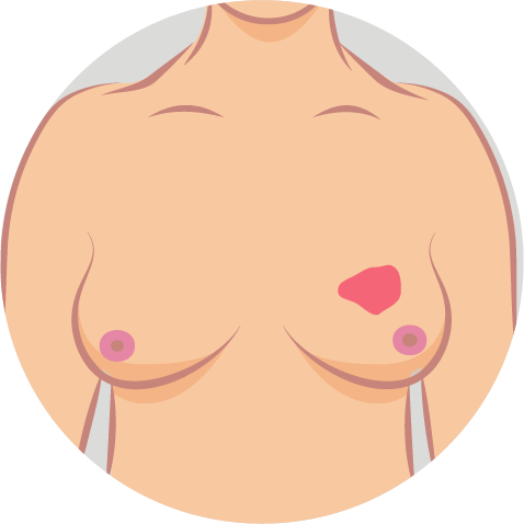 Brustkrebs-Symptome-8