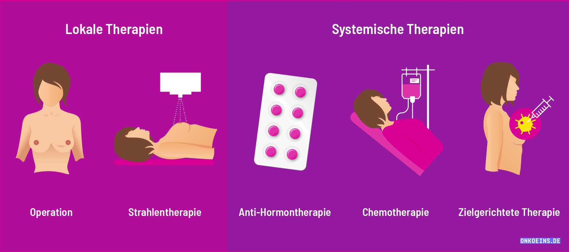 wie-wird-brustkrebs-behandelt-2